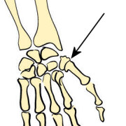types of joints the skeleton bones anatomy physiology rh teachpe com Immovable Joint Diagram Synovial Joint Cavity Diagram